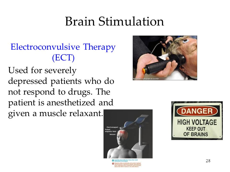 28 Brain Stimulation Electroconvulsive Therapy (ECT) Used for severely depressed patients who do not respond to drugs. The patient is anesthetized and