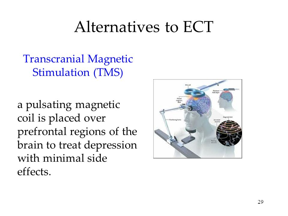 29 Alternatives to ECT Transcranial Magnetic Stimulation (TMS) a pulsating magnetic coil is placed over prefrontal regions of the brain to treat depre