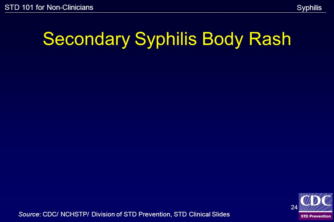 STD 101 for Non-Clinicians 24 Secondary Syphilis Body Rash Source: CDC/ NCHSTP/ Division of STD Prevention, STD Clinical Slides Syphilis