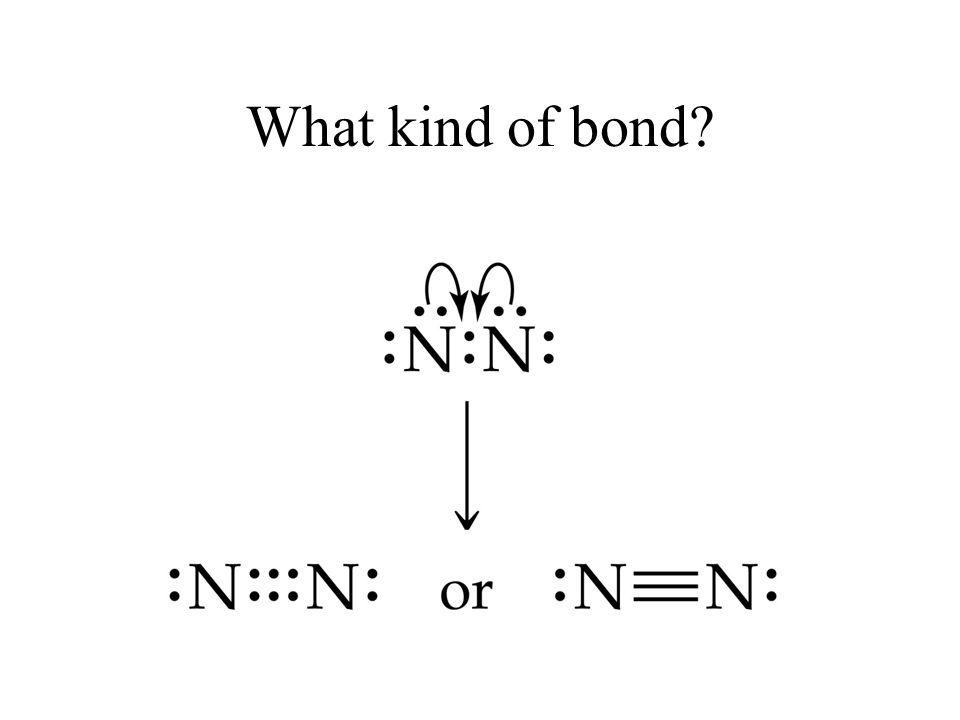 What kind of bond?