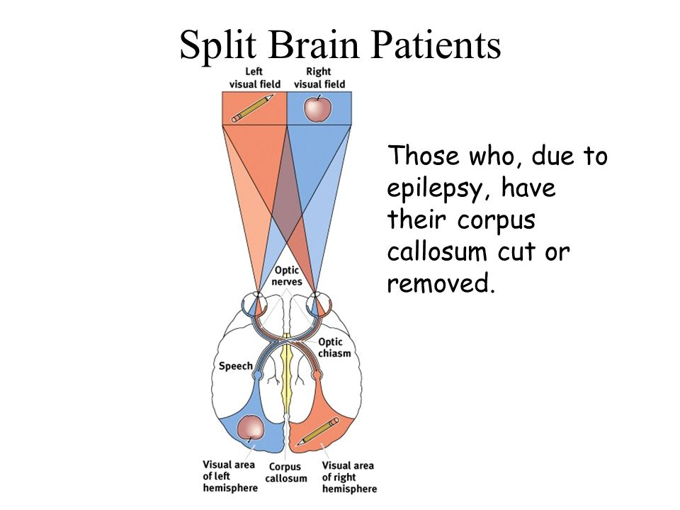 Split Brain Patients Those who, due to epilepsy, have their corpus callosum cut or removed.