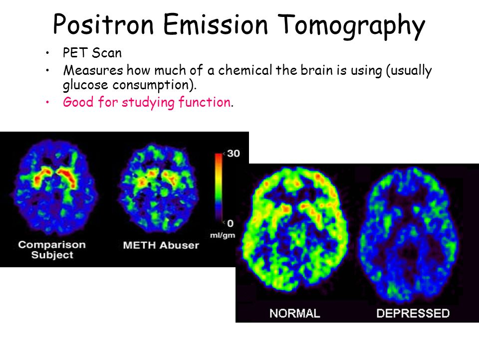 Positron Emission Tomography PET Scan Measures how much of a chemical the brain is using (usually glucose consumption). Good for studying function.