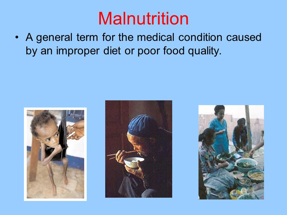 Malnutrition A general term for the medical condition caused by an improper diet or poor food quality.
