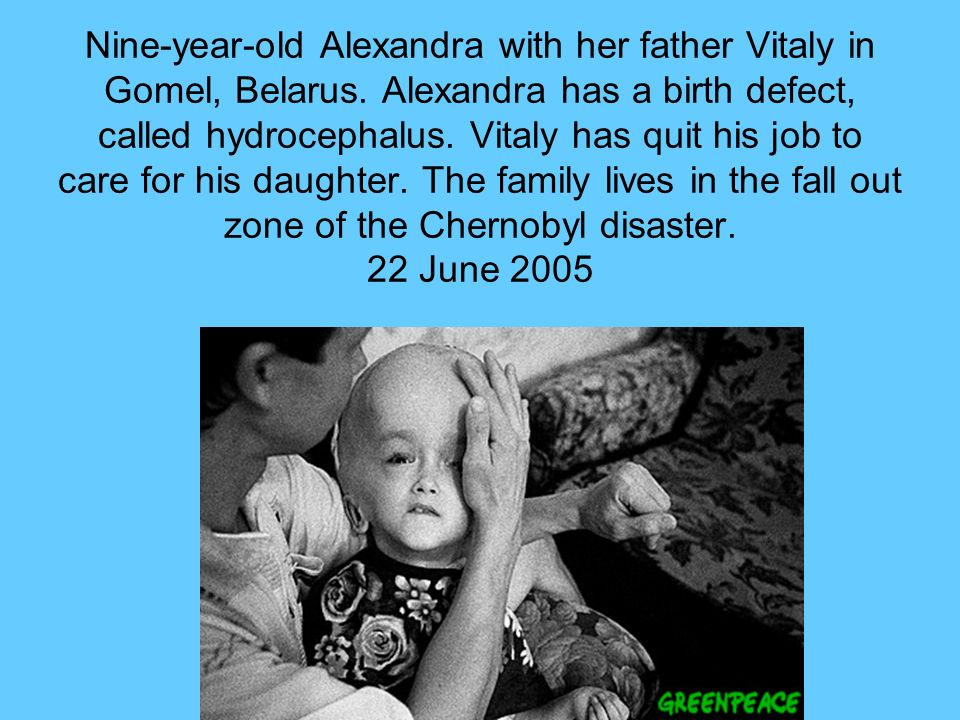 Nine-year-old Alexandra with her father Vitaly in Gomel, Belarus. Alexandra has a birth defect, called hydrocephalus. Vitaly has quit his job to care