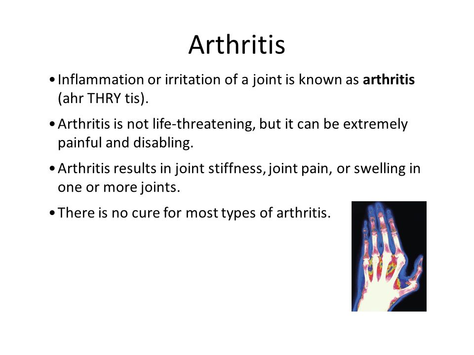Inflammation or irritation of a joint is known as arthritis (ahr THRY tis). Arthritis Arthritis is not life-threatening, but it can be extremely painf