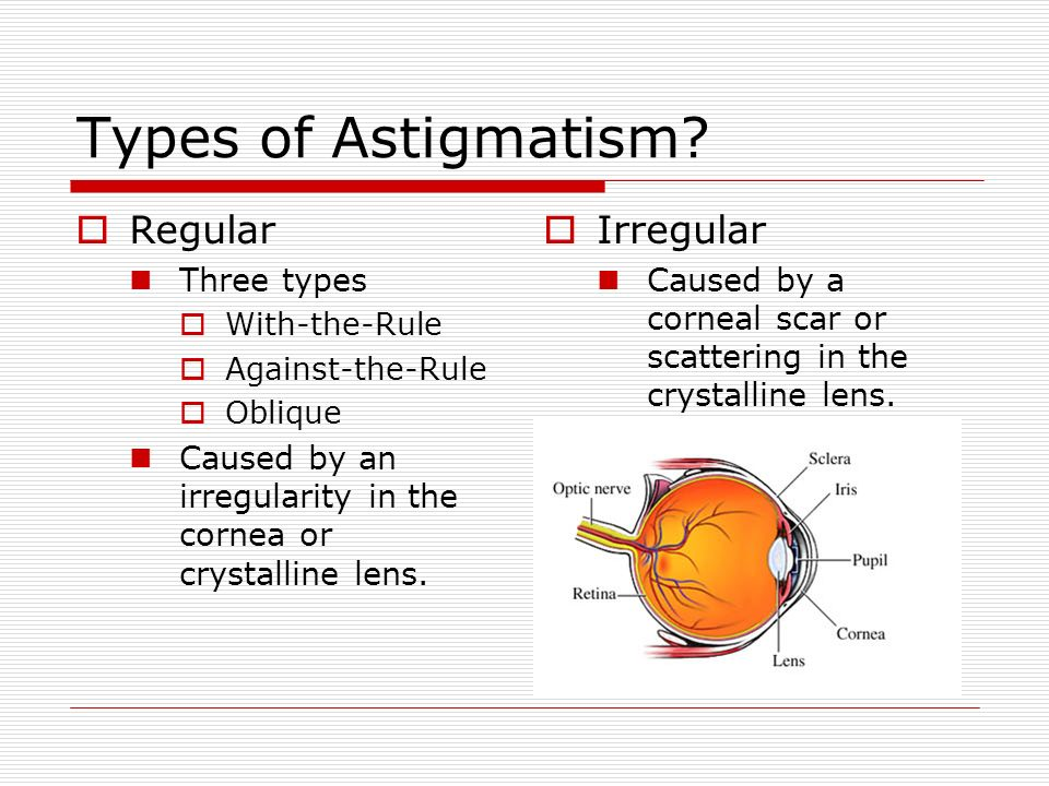 Types of Astigmatism? Regular Three types With-the-Rule Against-the-Rule Oblique Caused by an irregularity in the cornea or crystalline lens. Irregula