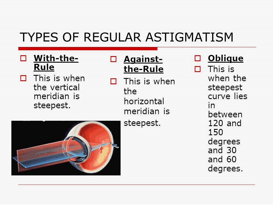 TYPES OF REGULAR ASTIGMATISM With-the- Rule This is when the vertical meridian is steepest. Oblique This is when the steepest curve lies in between 12