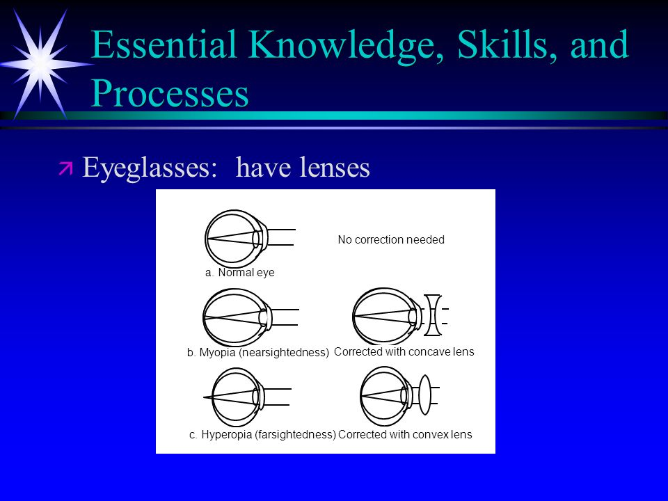 Essential Knowledge, Skills, and Processes ä ä Eyeglasses: have lenses c. Hyperopia (farsightedness) a. Normal eye b. Myopia (nearsightedness) Correct
