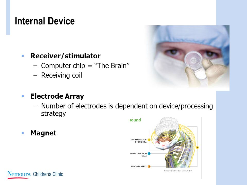 Internal Device Receiver/stimulator –Computer chip = The Brain –Receiving coil Electrode Array –Number of electrodes is dependent on device/processing