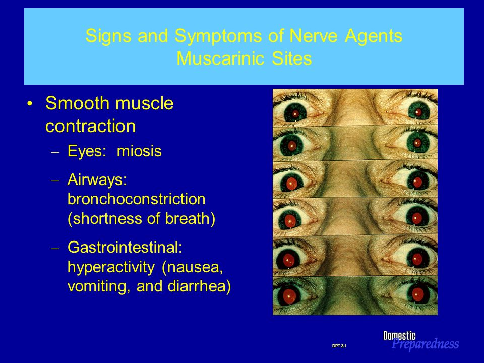 DPT 8.1 Signs and Symptoms of Nerve Agents Muscarinic Sites Smooth muscle contraction – Eyes: miosis – Airways: bronchoconstriction (shortness of brea