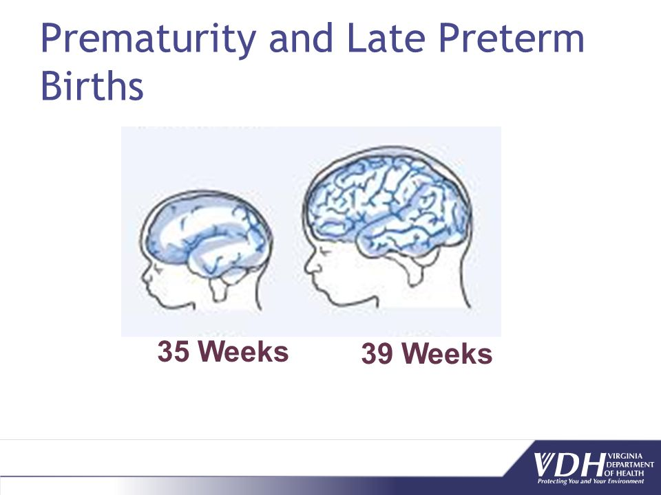 Prematurity and Late Preterm Births 35 Weeks 39 Weeks