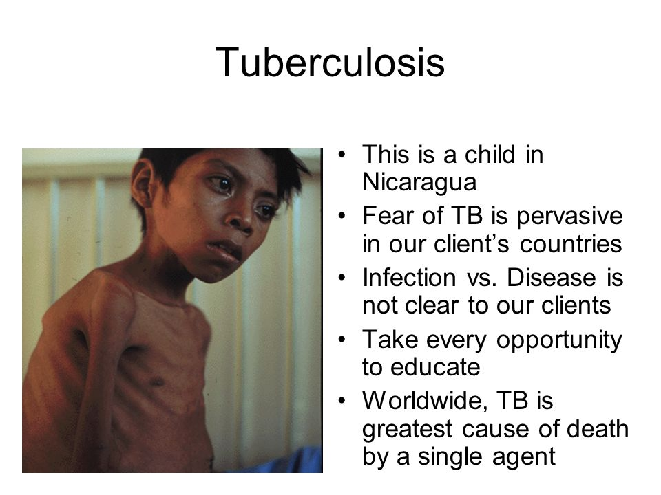 Tuberculosis This is a child in Nicaragua Fear of TB is pervasive in our clients countries Infection vs. Disease is not clear to our clients Take ever
