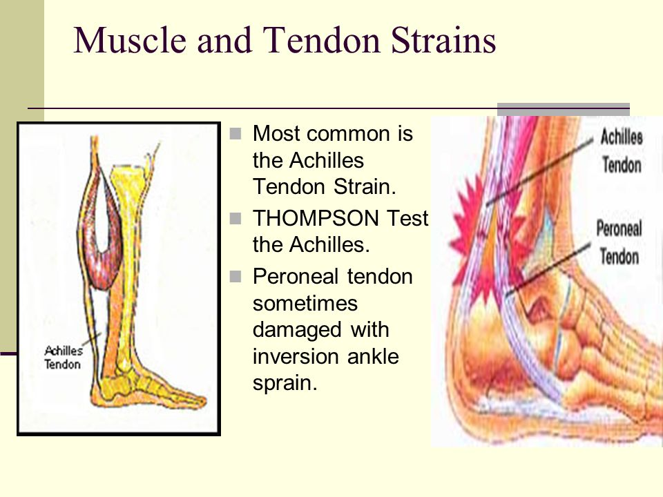 Muscle and Tendon Strains Most common is the Achilles Tendon Strain. THOMPSON Test the Achilles. Peroneal tendon sometimes damaged with inversion ankl