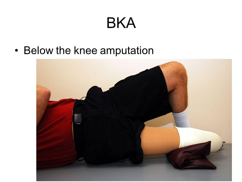 BKA Below the knee amputation