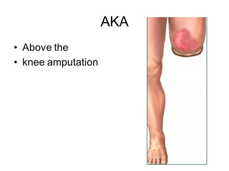 AKA Above the knee amputation