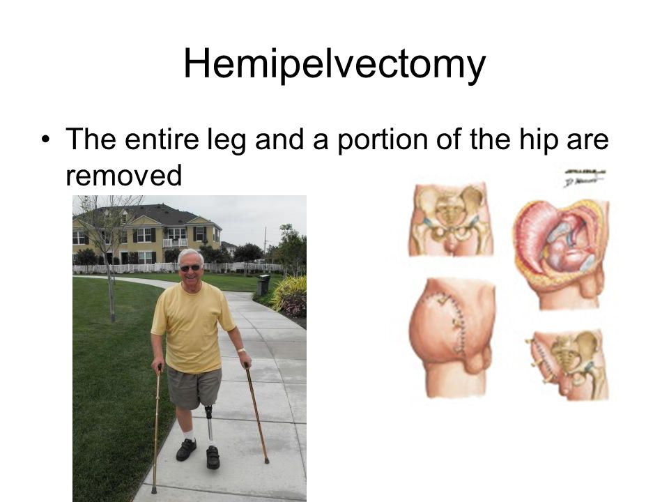 Hemipelvectomy The entire leg and a portion of the hip are removed