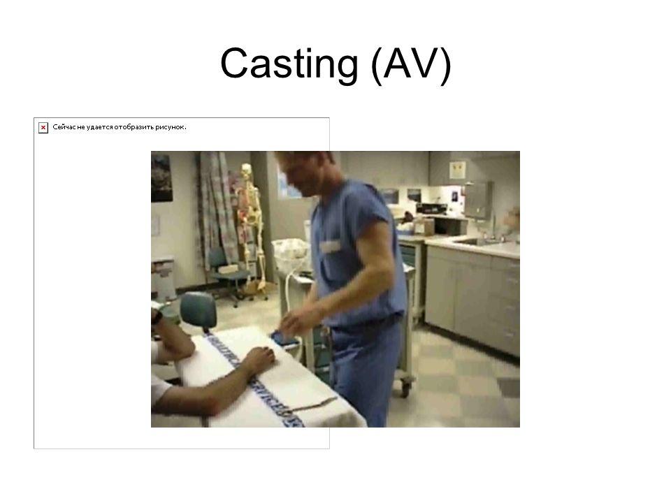Casting (AV)