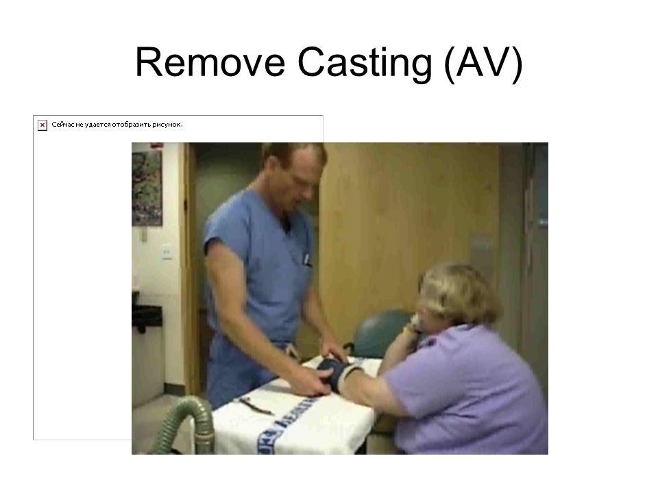Remove Casting (AV)