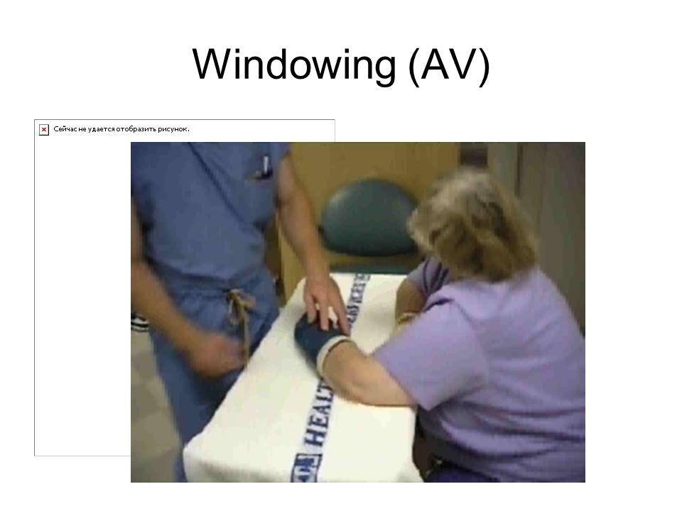 Windowing (AV)
