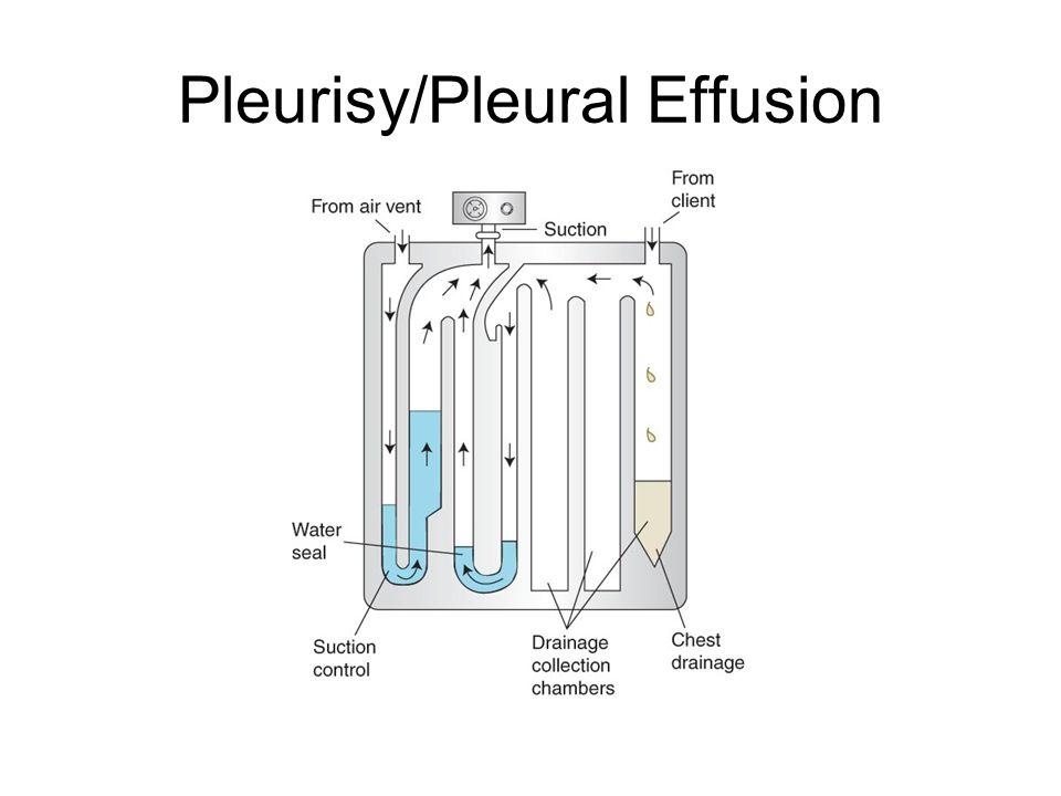 Pleurisy/Pleural Effusion