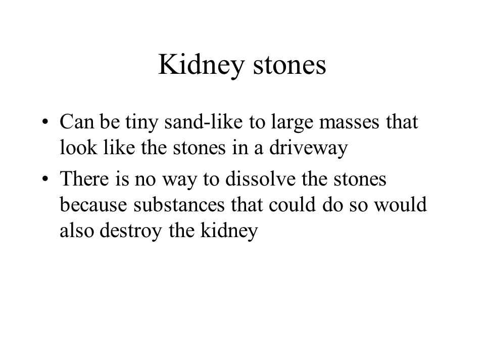 Kidney stones Can be tiny sand-like to large masses that look like the stones in a driveway There is no way to dissolve the stones because substances