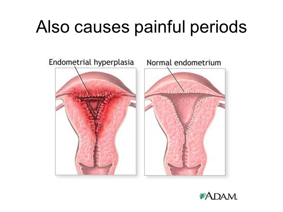 Also causes painful periods