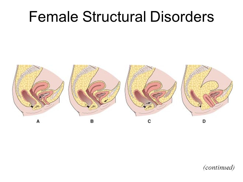 Female Structural Disorders (continued)
