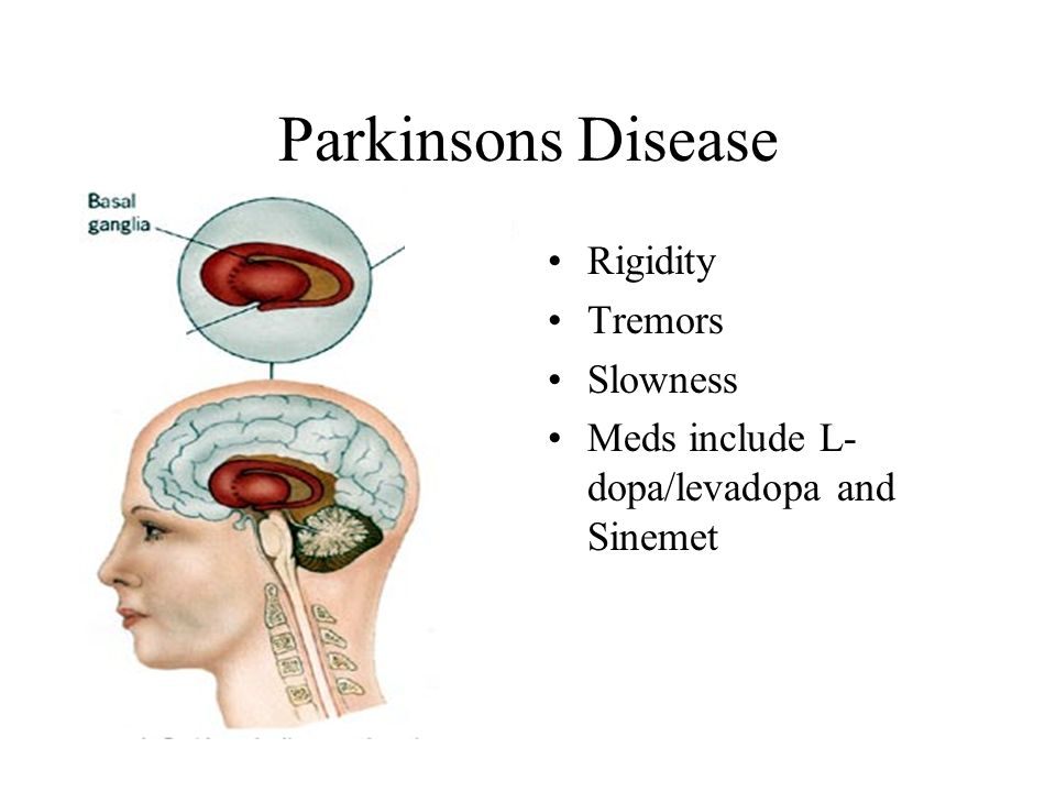 Parkinsons Disease Rigidity Tremors Slowness Meds include L- dopa/levadopa and Sinemet