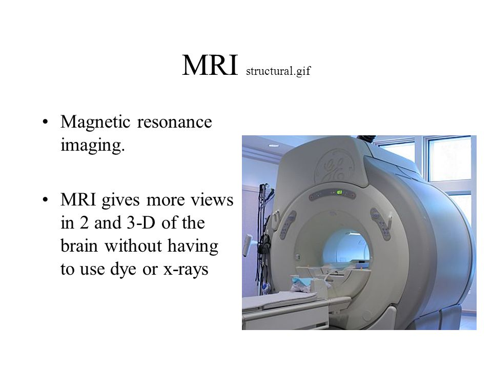 MRI structural.gif Magnetic resonance imaging. MRI gives more views in 2 and 3-D of the brain without having to use dye or x-rays