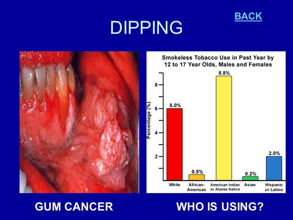 DIPPING GUM CANCERWHO IS USING BACK