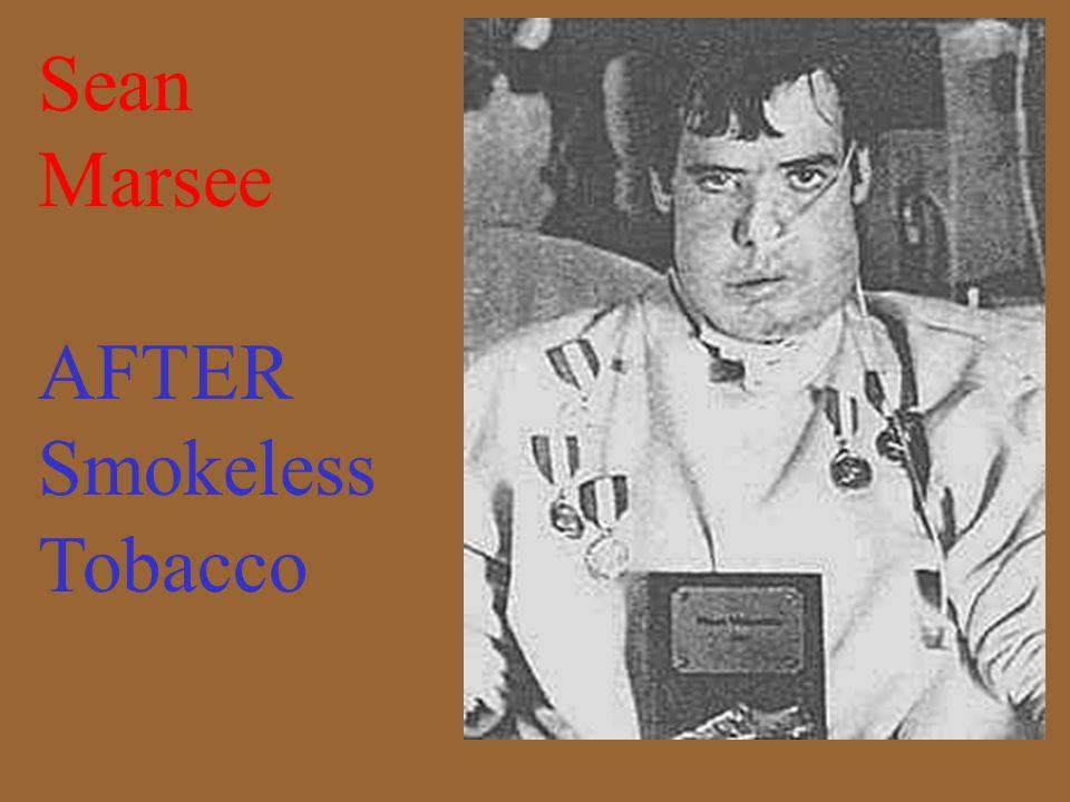 Sean Marsee BEFORE Smokeless Tobacco