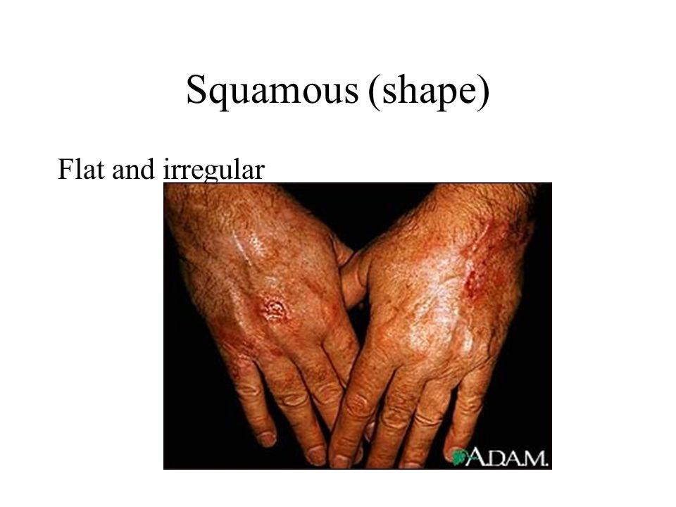 Squamous (shape) Flat and irregular