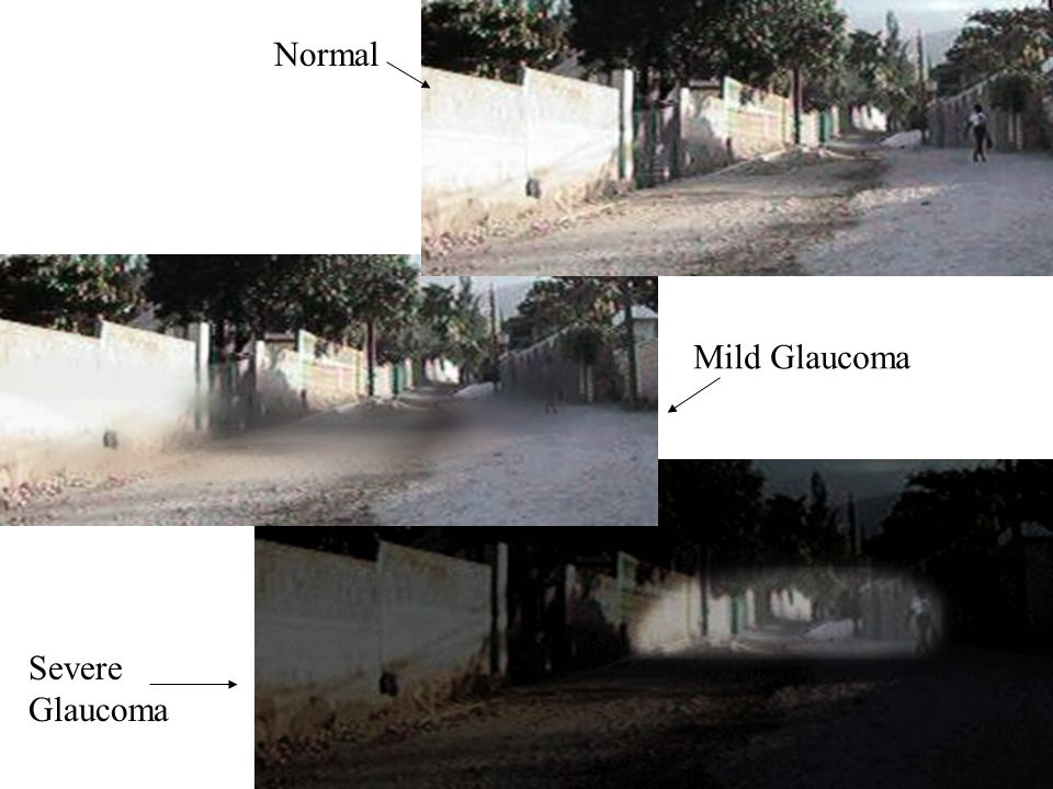 Normal Mild Glaucoma Severe Glaucoma