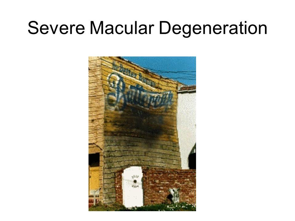 Severe Macular Degeneration