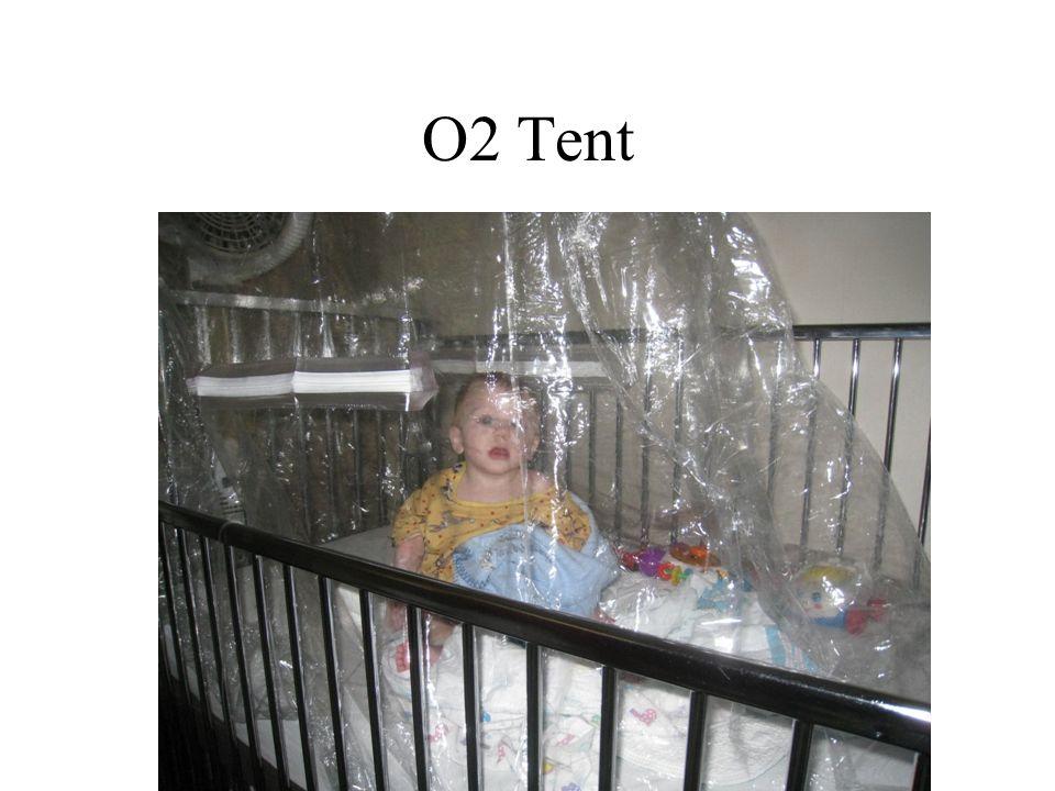 O2 Tent
