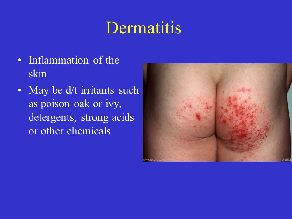 Dermatitis Inflammation of the skin May be d/t irritants such as poison oak or ivy, detergents, strong acids or other chemicals