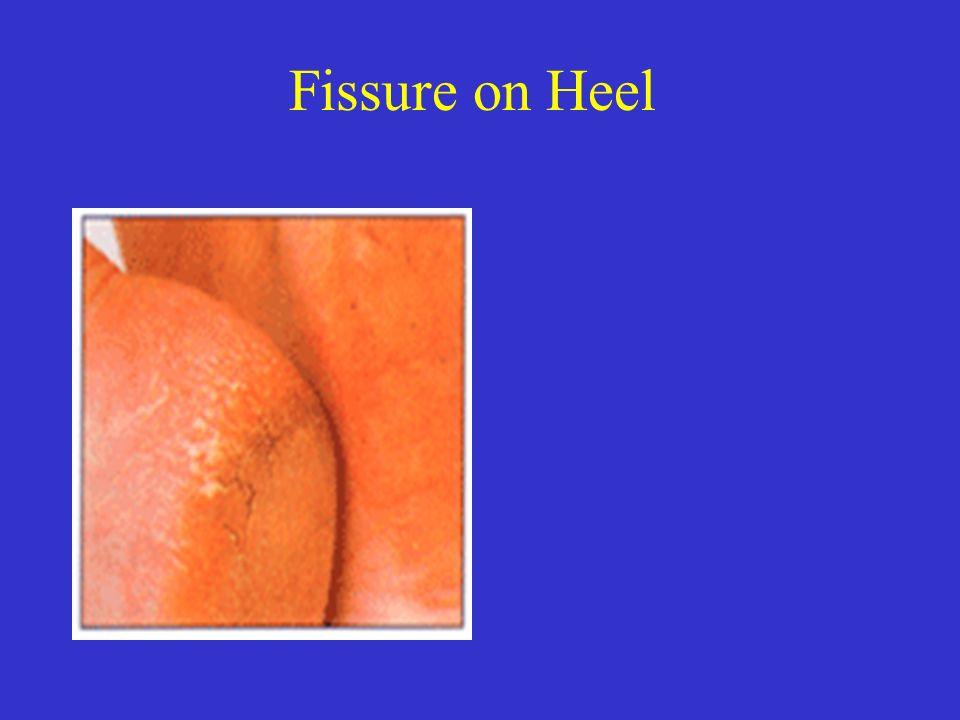Fissure on Heel