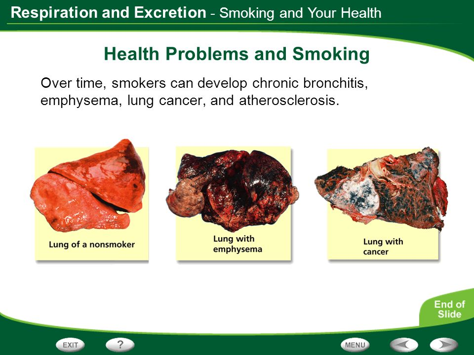 Respiration and Excretion - Smoking and Your Health Health Problems and Smoking Over time, smokers can develop chronic bronchitis, emphysema, lung can