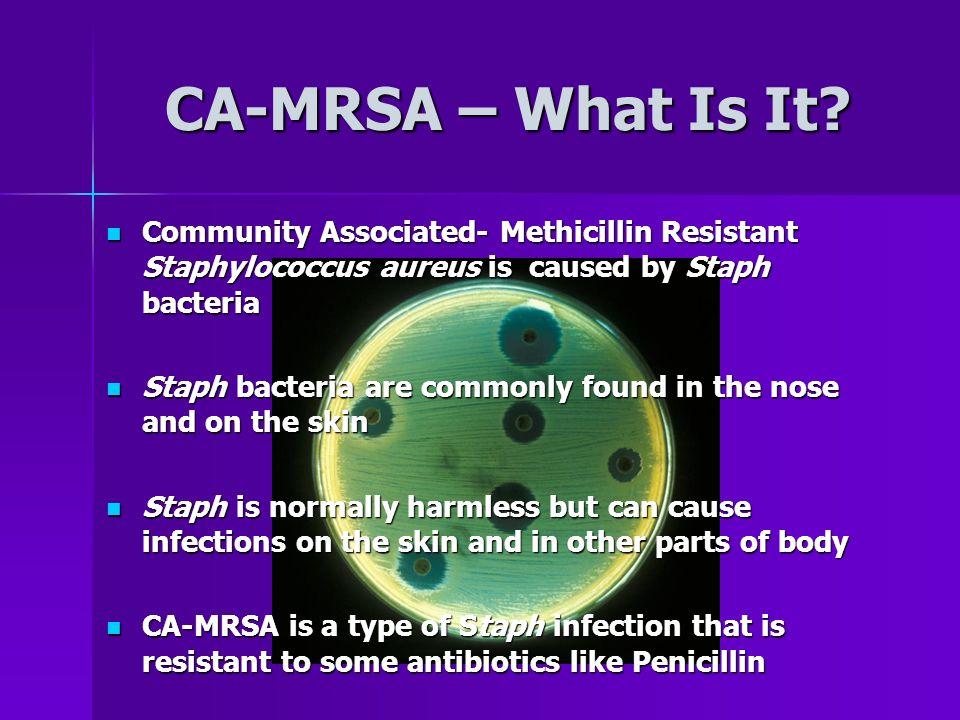 CA-MRSA – What Is It.