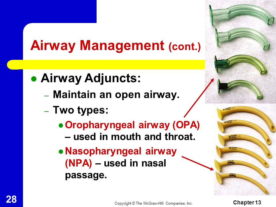 Copyright © The McGraw-Hill Companies, Inc. Chapter 13 27 Airway Management First Responders and EMTs manage life- threatening problems of airway, bre