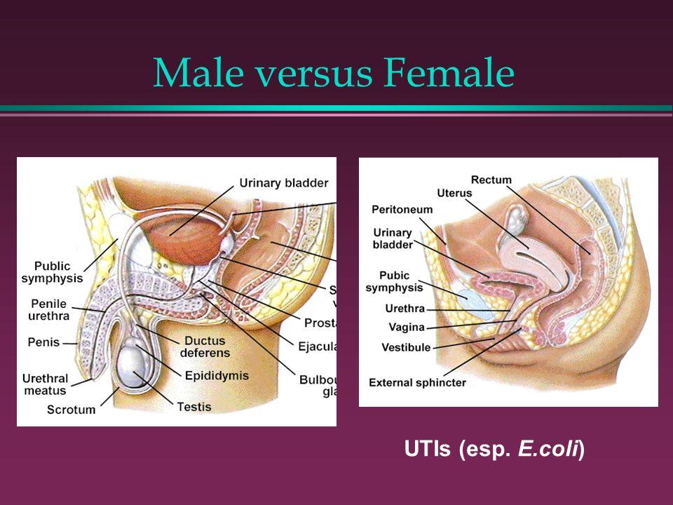 UTIs (esp. E.coli) Male versus Female