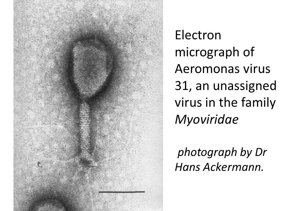 Electron micrograph of Aeromonas virus 31, an unassigned virus in the family Myoviridae photograph by Dr Hans Ackermann.
