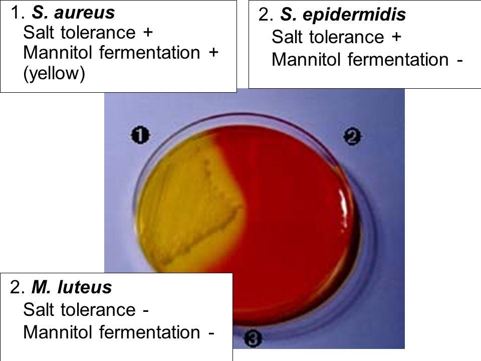 Staphylococcus epidermidis Growing on Mannitol Salt Agar Staphylococcus aureus Growing on Mannitol Salt Agar.