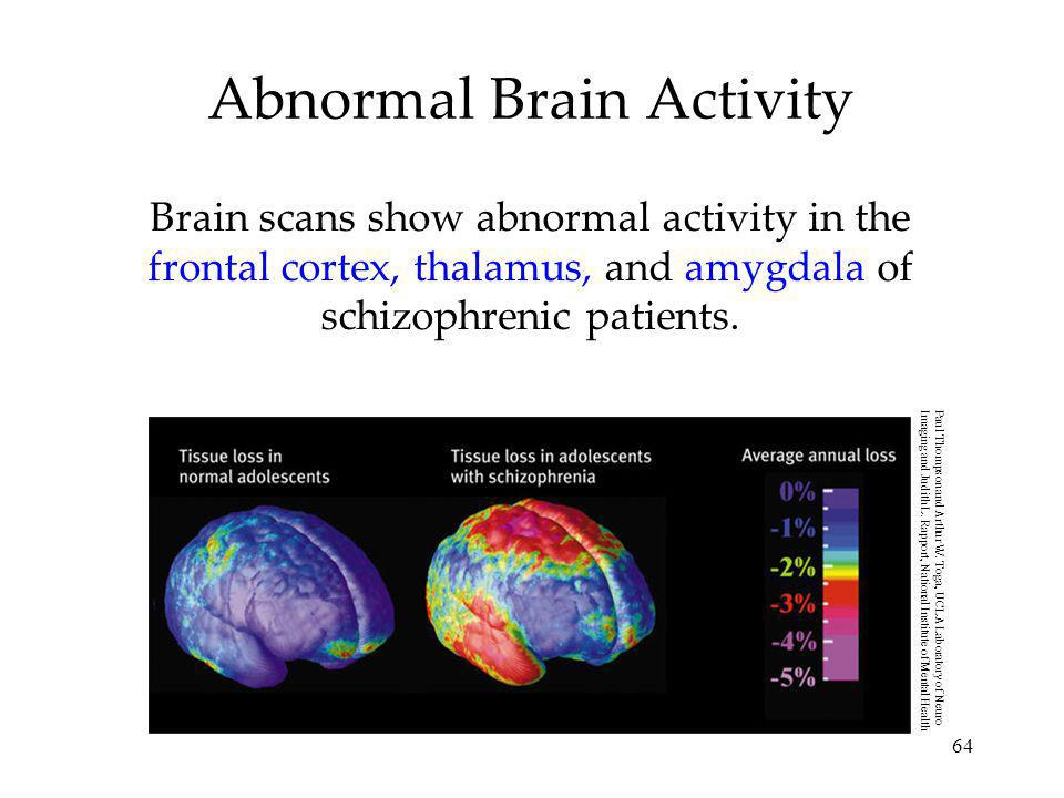 64 Abnormal Brain Activity Brain scans show abnormal activity in the frontal cortex, thalamus, and amygdala of schizophrenic patients. Paul Thompson a