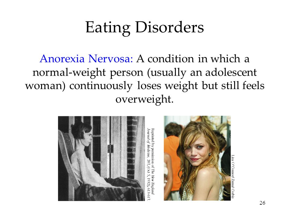 26 Eating Disorders Anorexia Nervosa: A condition in which a normal-weight person (usually an adolescent woman) continuously loses weight but still fe