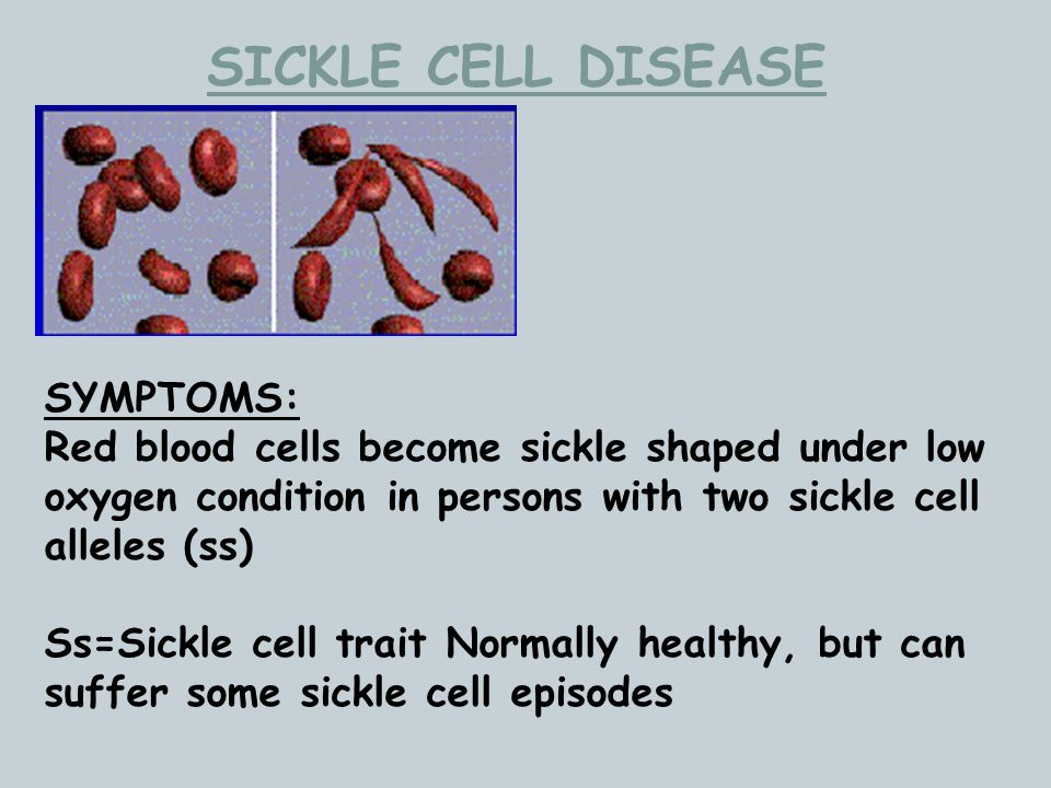 SICKLE CELL DISEASE SYMPTOMS: Red blood cells become sickle shaped under low oxygen condition in persons with two sickle cell alleles (ss) Ss=Sickle c