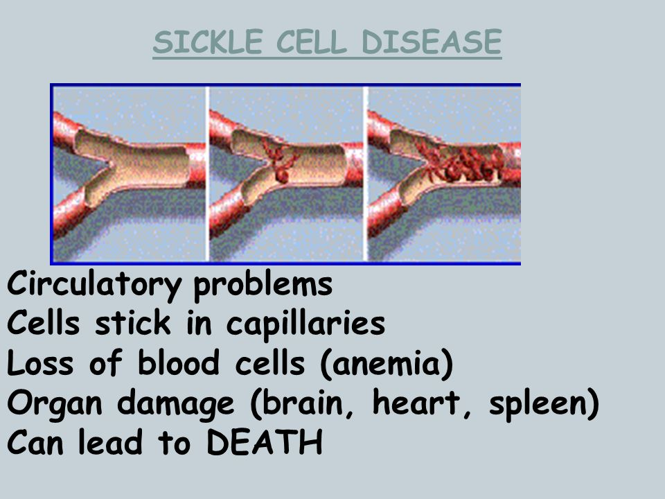 SICKLE CELL DISEASE Circulatory problems Cells stick in capillaries Loss of blood cells (anemia) Organ damage (brain, heart, spleen) Can lead to DEATH