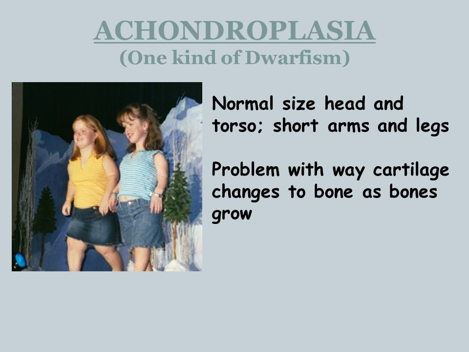 ACHONDROPLASIA (One kind of Dwarfism) Normal size head and torso; short arms and legs Problem with way cartilage changes to bone as bones grow