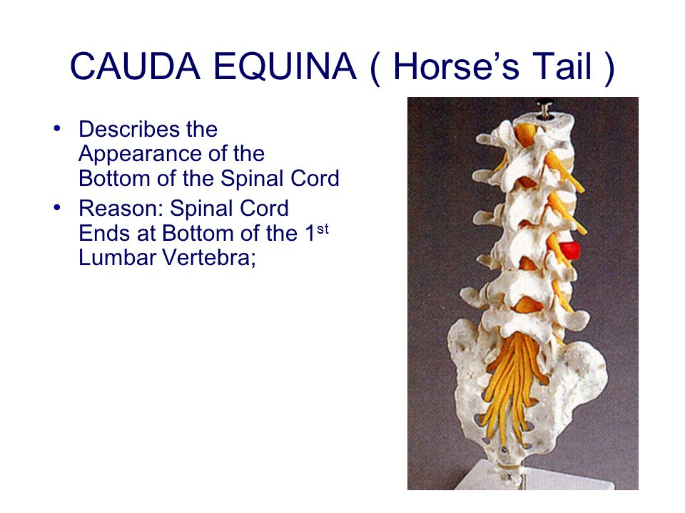 CAUDA EQUINA ( Horses Tail ) Describes the Appearance of the Bottom of the Spinal Cord Reason: Spinal Cord Ends at Bottom of the 1 st Lumbar Vertebra;