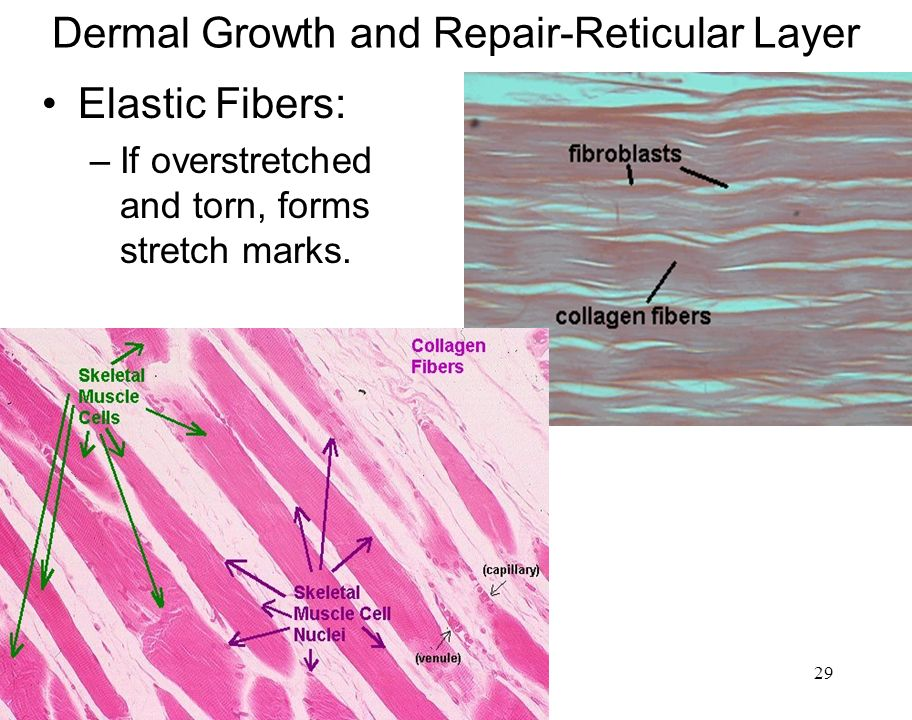 3/28/201429 Dermal Growth and Repair-Reticular Layer Elastic Fibers: –If overstretched and torn, forms stretch marks.